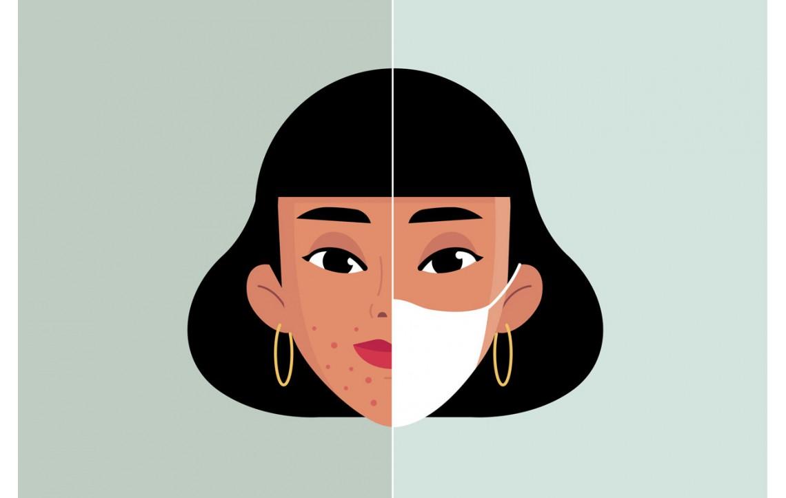 ''Maskne'' – novi oblik akni nastalih kao posljedica nošenja maski.