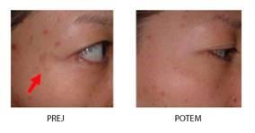 Delovanje seruma z vitaminom C - 100 % odstranitev pigmentnih madežev